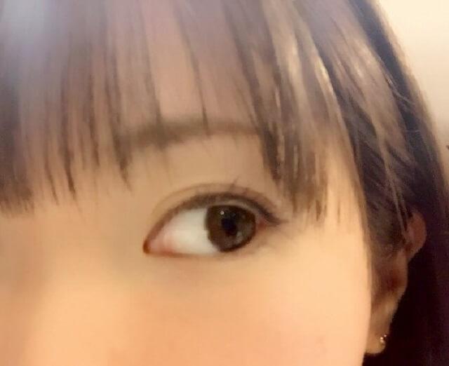 目の下のクマを改善するエクササイズ