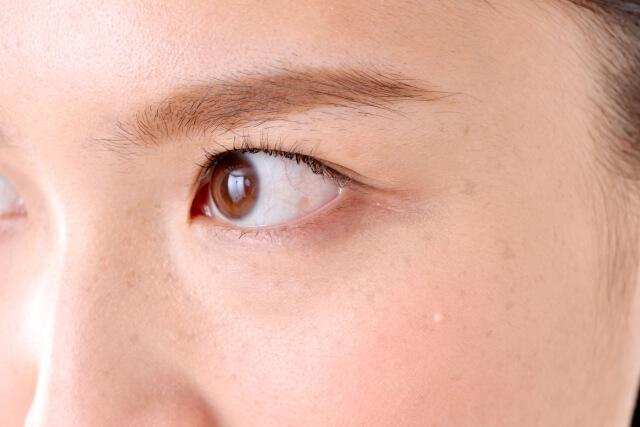 目の下のくすみ改善法!原因やくすみを解消する7つのケア法