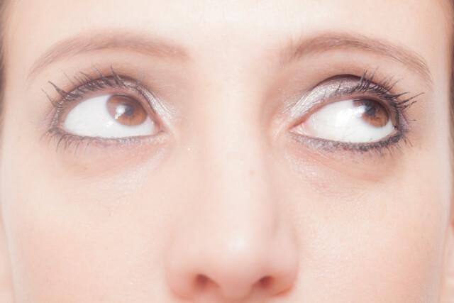 目の下のたるみ改善法!老け顔を解消するエクササイズと5つの対策法