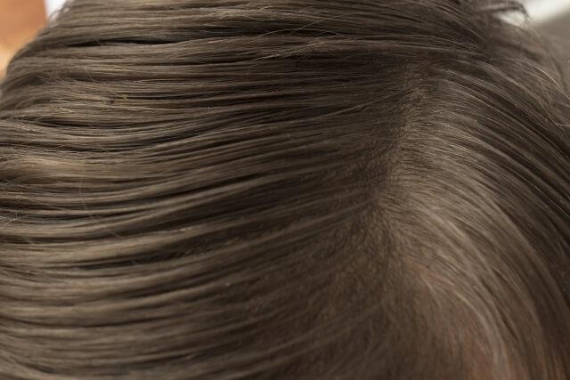 頭皮が皮脂がベタつく4つの原因