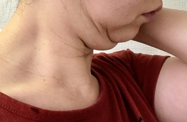 顎のたるみ改善法!原因や小顔美人になる8つの解消・予防法
