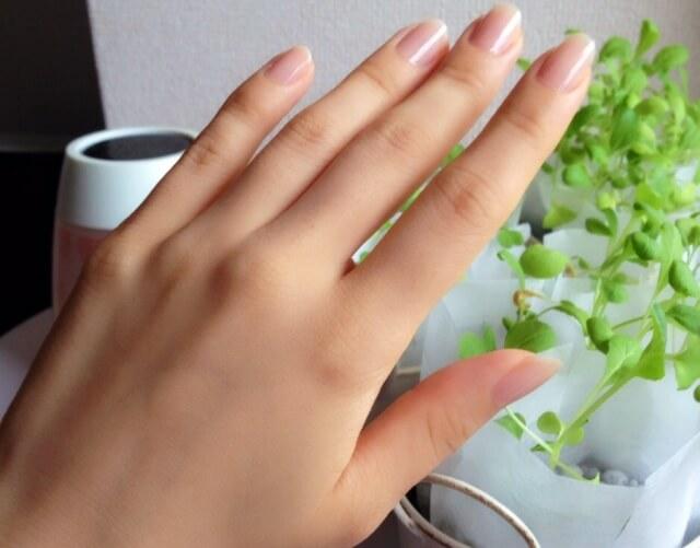 手の甲のシミの症状別対処法