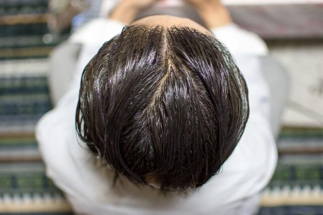 若白髪を改善する5つの方法!原因や効果的な対処法とは