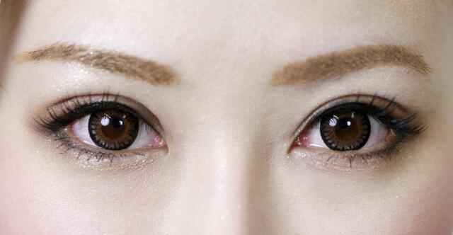 美容クリニックでまぶたのしわを改善する方法