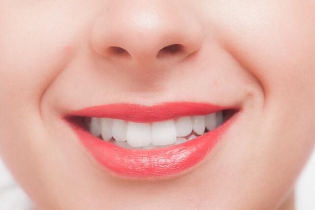 歯の黄ばみの原因とセルフケア法まとめ
